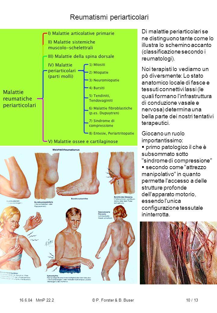 Reumatismi periarticolari