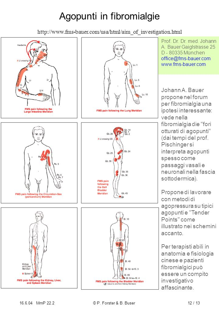 Agopunti in fibromialgie