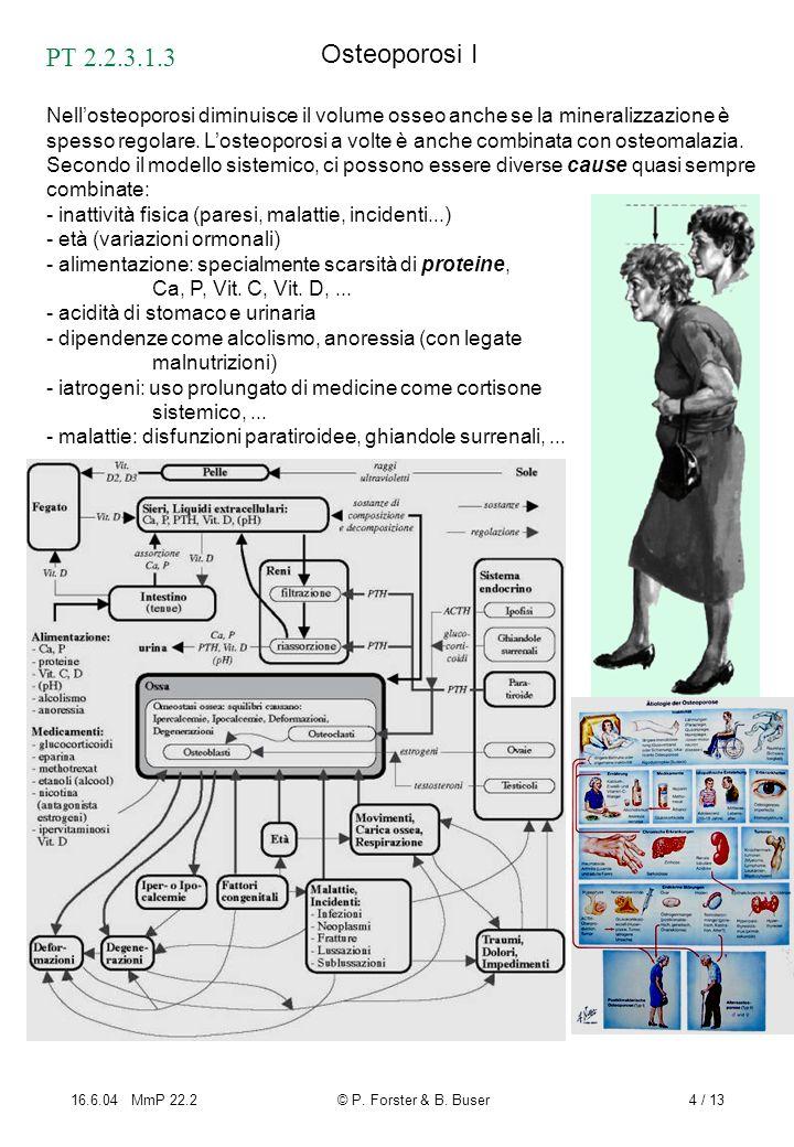 Osteoporosi I PT 2.2.3.1.3.