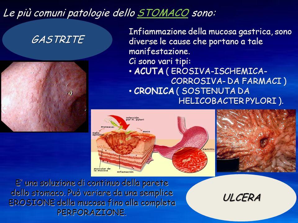 Le più comuni patologie dello STOMACO sono: