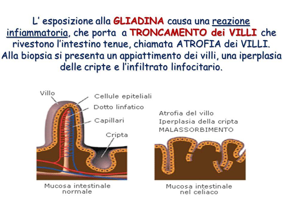 L' esposizione alla GLIADINA causa una reazione infiammatoria, che porta a TRONCAMENTO dei VILLI che rivestono l'intestino tenue, chiamata ATROFIA dei VILLI.