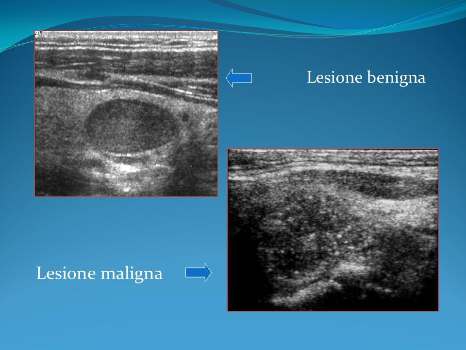 Lesione benigna Lesione maligna
