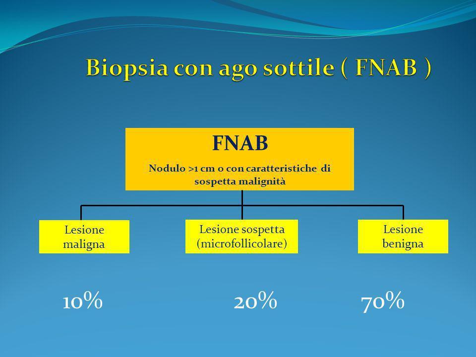 Biopsia con ago sottile ( FNAB )