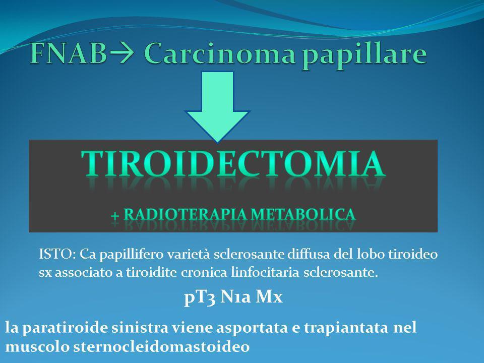 FNAB Carcinoma papillare
