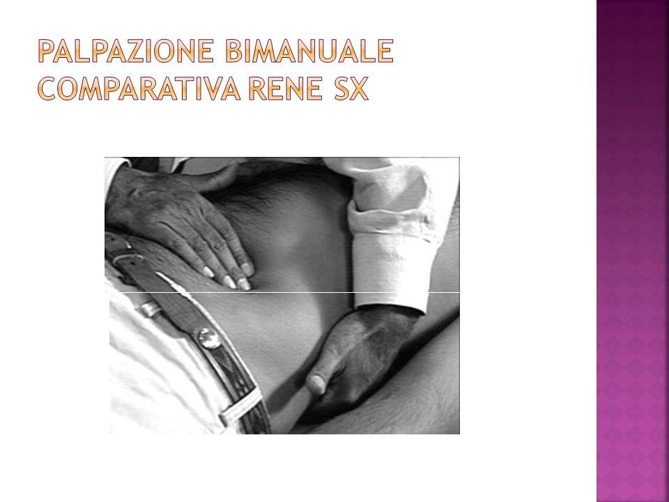 PALPAZIONE BIMANUALE COMPARATIVA RENE SX