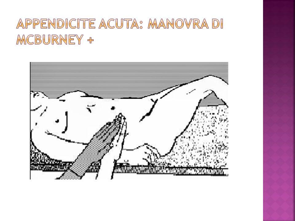 Appendicite Acuta: Manovra di McBurney +