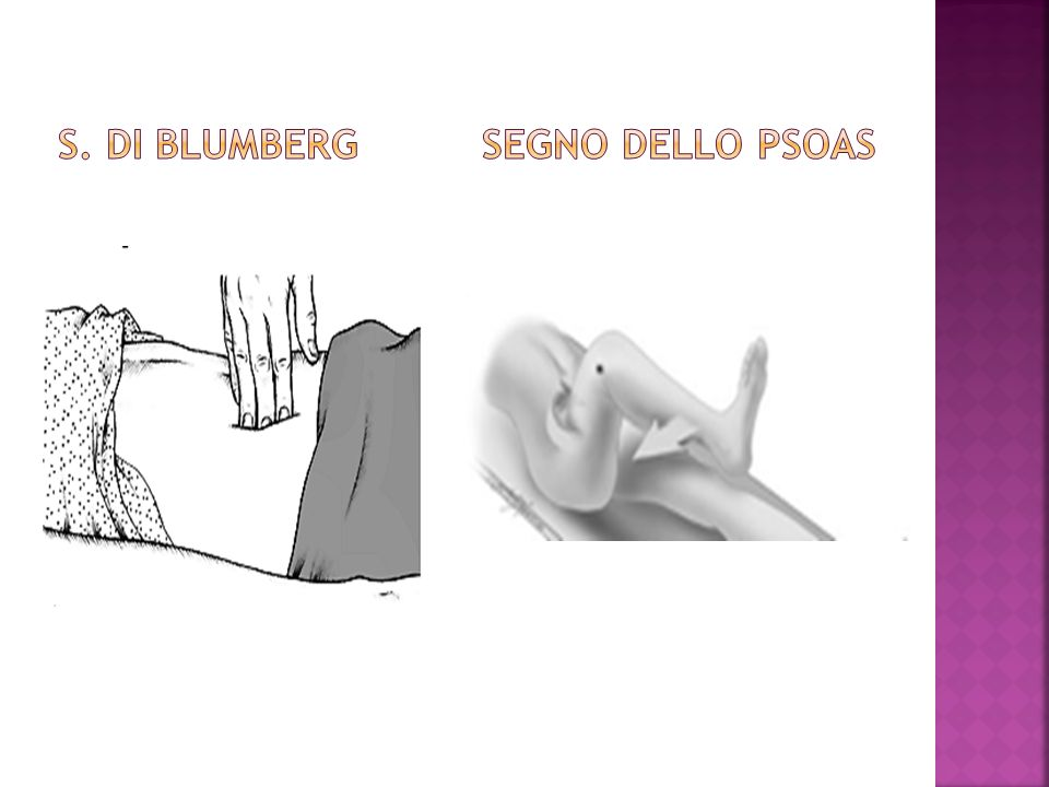 S. DI BLUMBERG SEGNO DELLO PSOAS