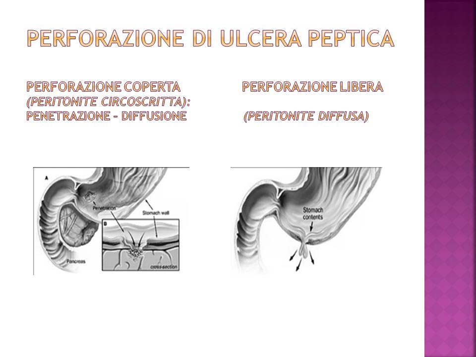 PERFORAZIONE DI ULCERA PEPTICA PERFORAZIONE COPERTA PERFORAZIONE LIBERA (Peritonite circoscritta): penetrazione – diffusione (Peritonite diffusa)