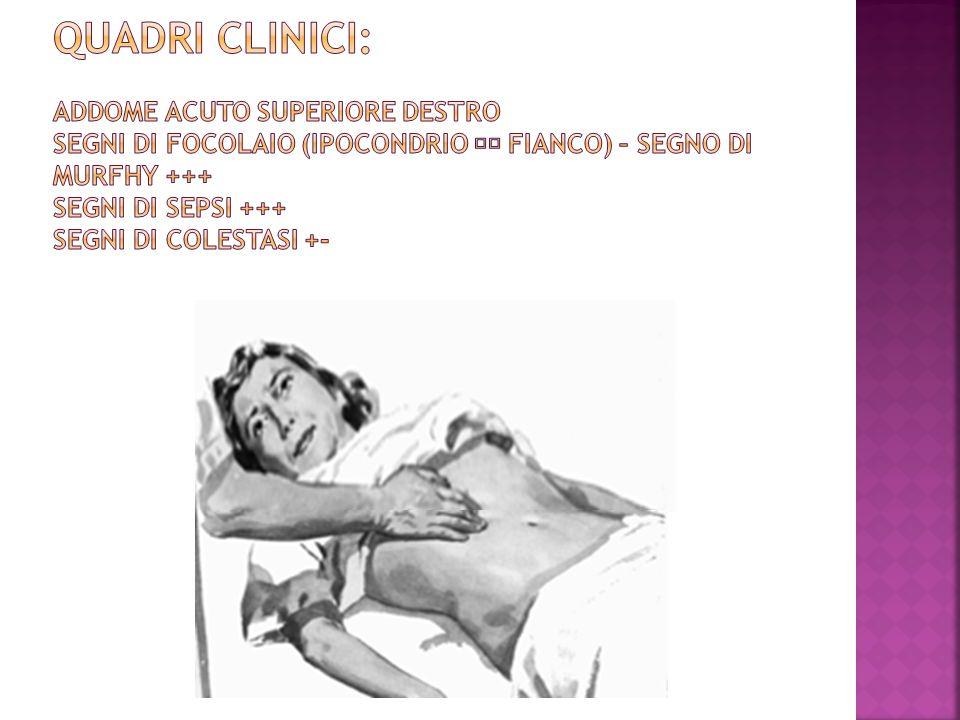 QUADRI CLINICI: Addome acuto superiore destro Segni di focolaio (ipocondrio  fianco) – Segno di Murfhy +++ Segni di sepsi +++ Segni di colestasi +-
