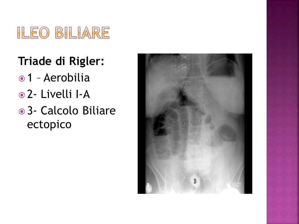 ILEO BILIARE Triade di Rigler: 1 – Aerobilia 2- Livelli I-A