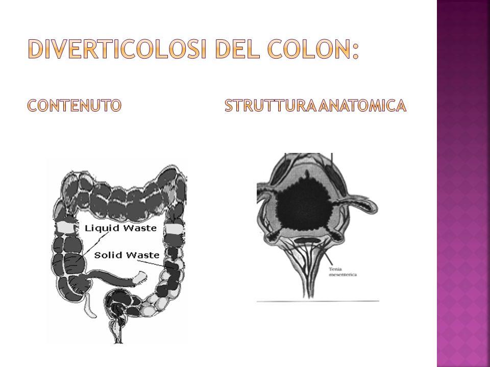 DIVERTICOLOSI DEL COLON: Contenuto struttura anatomica