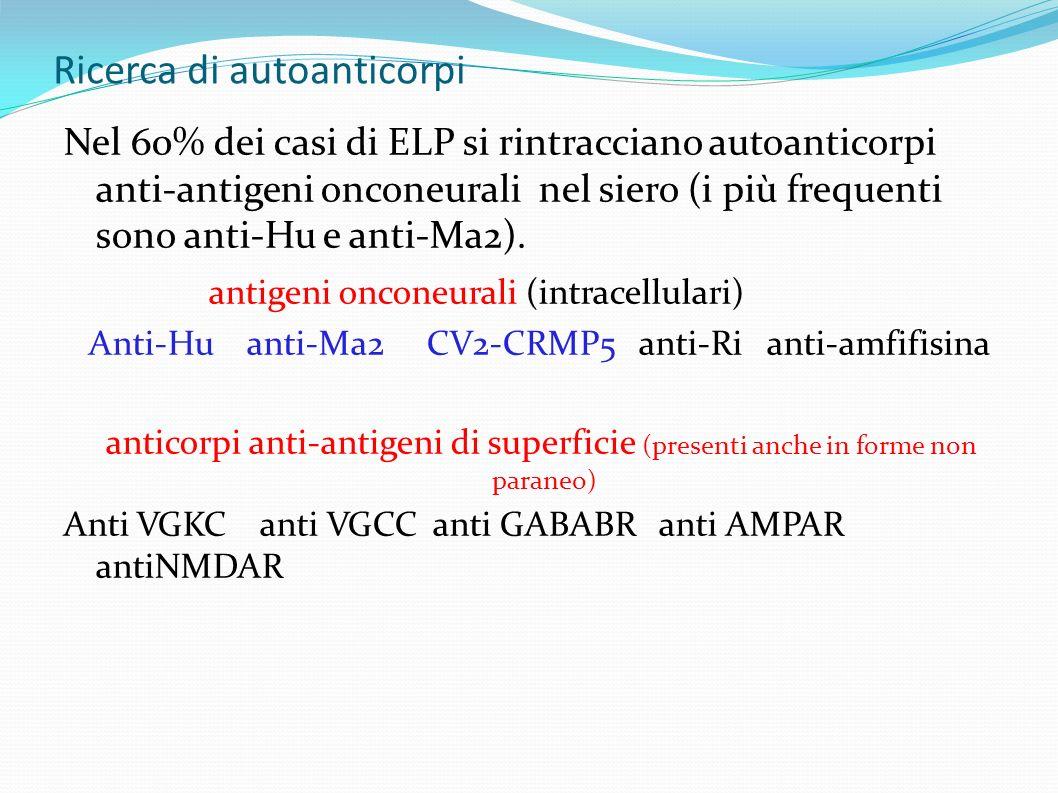 Ricerca di autoanticorpi