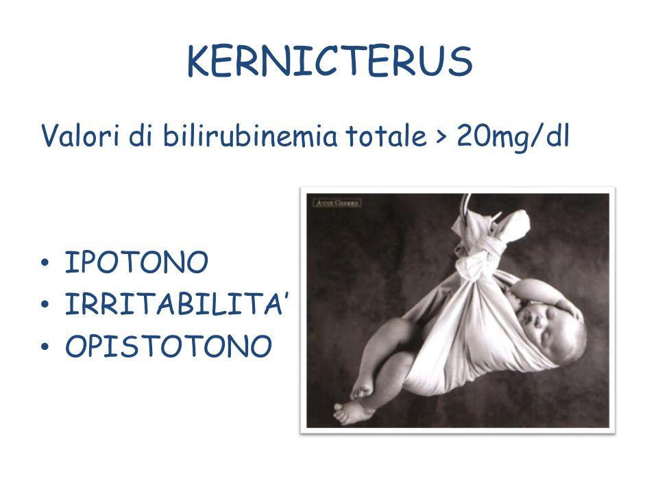 KERNICTERUS Valori di bilirubinemia totale > 20mg/dl IPOTONO