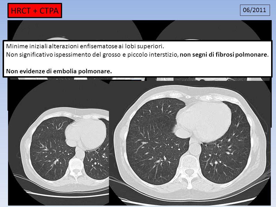 HRCT + CTPA 06/2011. Minime iniziali alterazioni enfisematose ai lobi superiori.