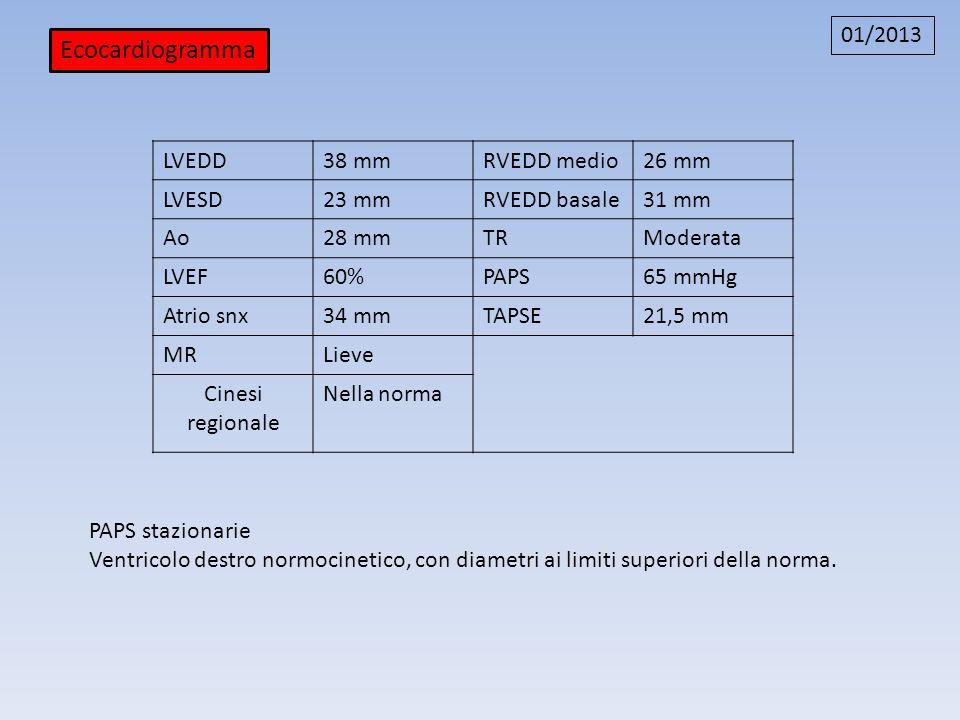 Ecocardiogramma 01/2013 LVEDD 38 mm RVEDD medio 26 mm LVESD 23 mm