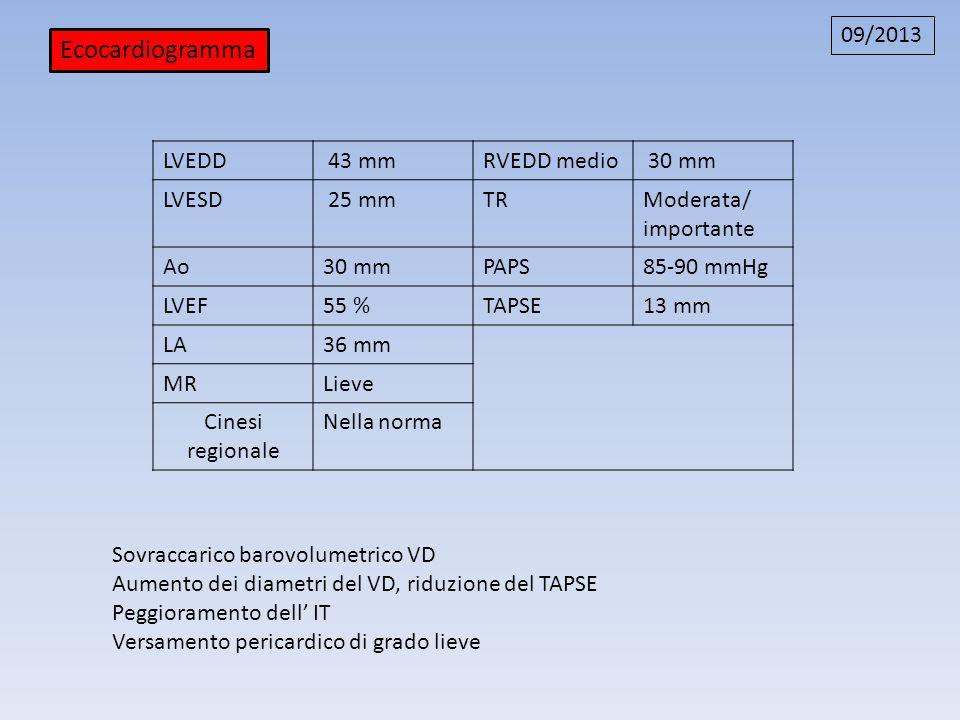 Ecocardiogramma 09/2013 LVEDD 43 mm RVEDD medio 30 mm LVESD 25 mm TR