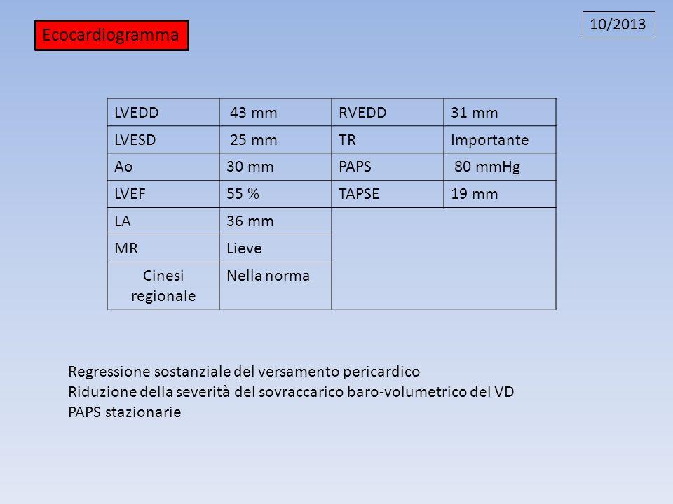 Ecocardiogramma 10/2013 LVEDD 43 mm RVEDD 31 mm LVESD 25 mm TR