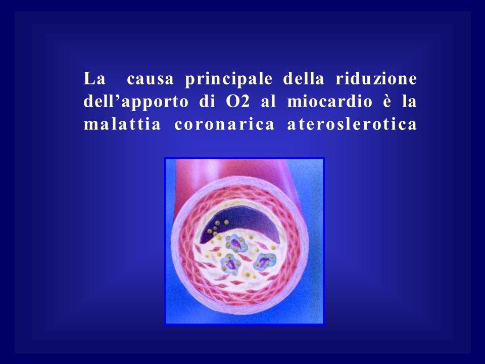 La causa principale della riduzione dell'apporto di O2 al miocardio è la malattia coronarica ateroslerotica