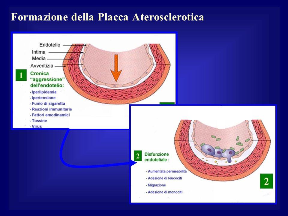 Formazione della Placca Aterosclerotica