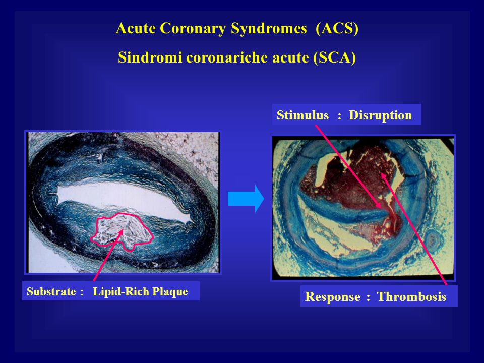 Acute Coronary Syndromes (ACS) Sindromi coronariche acute (SCA)