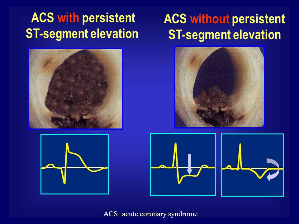 ACS without persistent