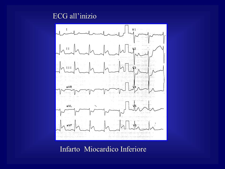 ECG all'inizio Infarto Miocardico Inferiore