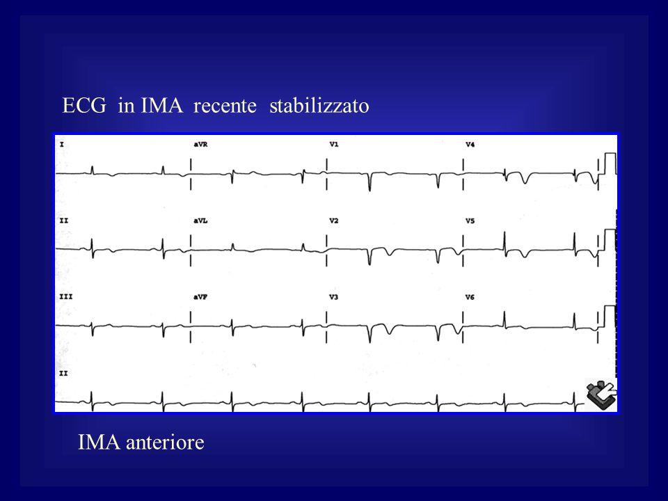 ECG in IMA recente stabilizzato