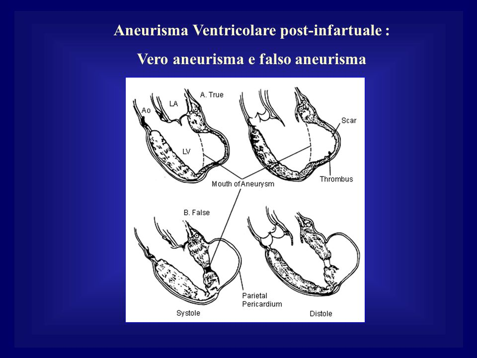 Aneurisma Ventricolare post-infartuale :