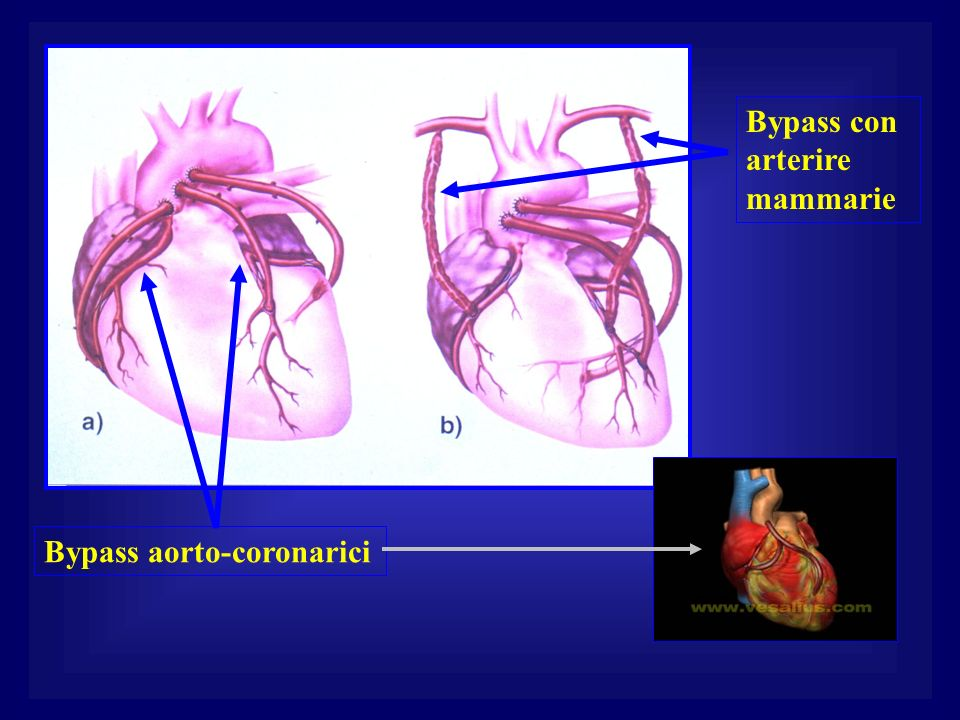 Bypass con arterire mammarie