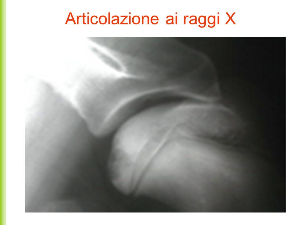 Articolazione ai raggi X