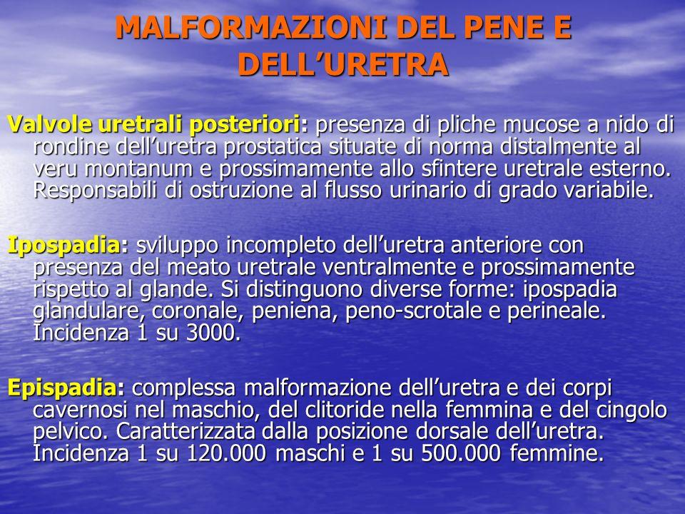 MALFORMAZIONI DEL PENE E DELL'URETRA