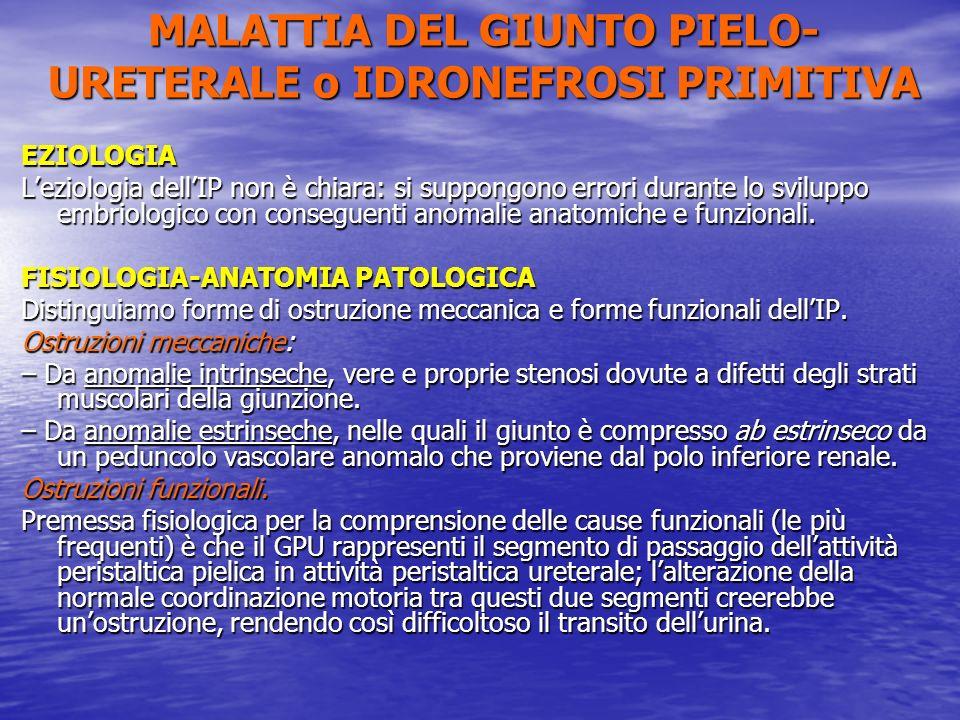 MALATTIA DEL GIUNTO PIELO-URETERALE o IDRONEFROSI PRIMITIVA