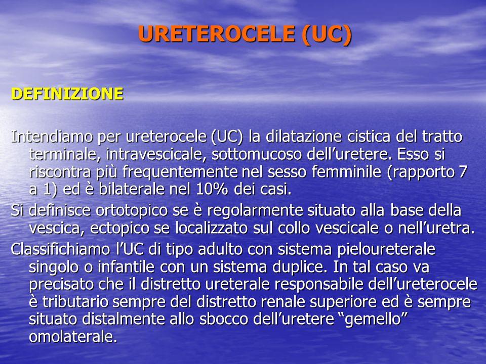 URETEROCELE (UC) DEFINIZIONE