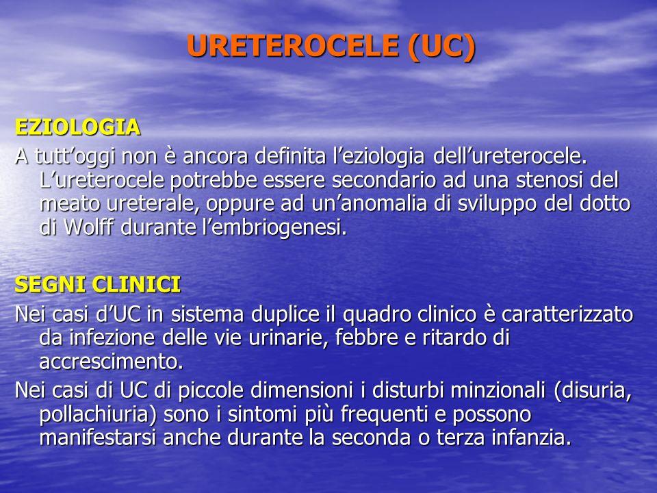 URETEROCELE (UC) EZIOLOGIA