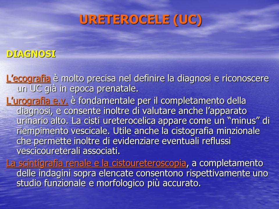URETEROCELE (UC) DIAGNOSI