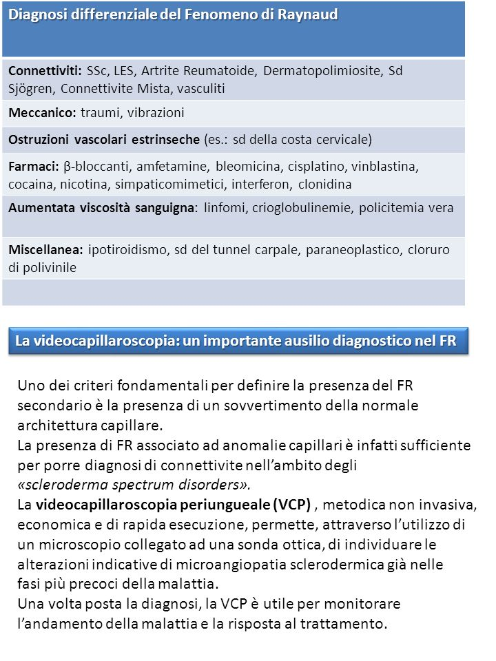 Diagnosi differenziale del Fenomeno di Raynaud