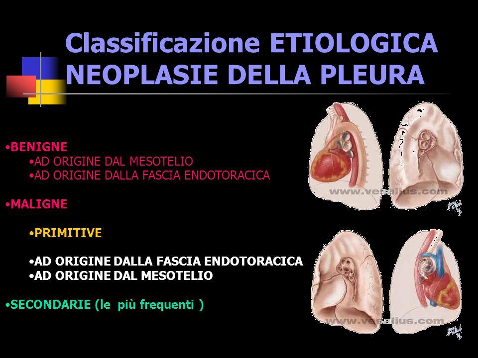 Classificazione ETIOLOGICA NEOPLASIE DELLA PLEURA