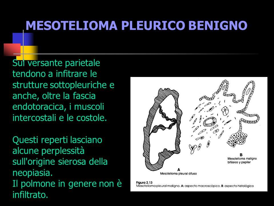 MESOTELIOMA PLEURICO BENIGNO