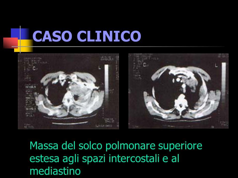 CASO CLINICO Massa del solco polmonare superiore estesa agli spazi intercostali e al mediastino