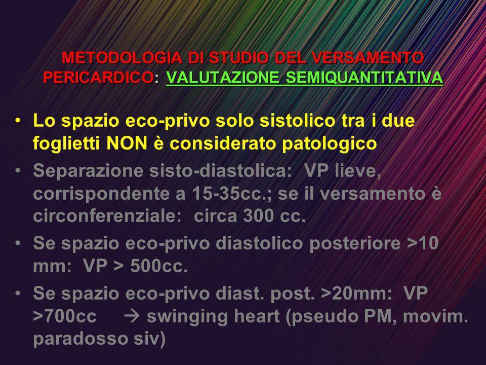 Se spazio eco-privo diastolico posteriore >10 mm: VP > 500cc.