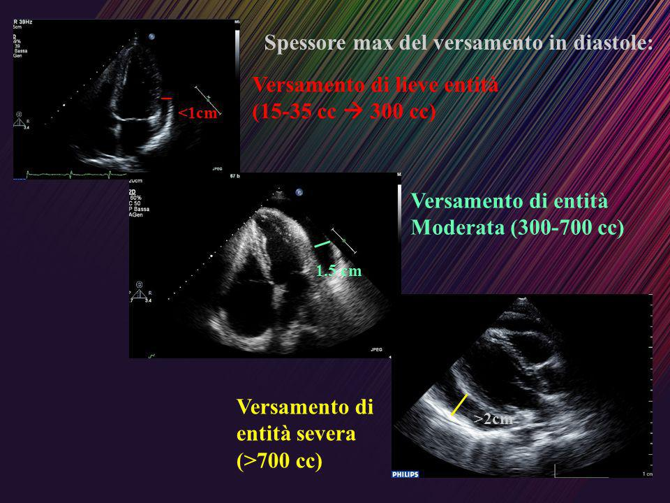 Spessore max del versamento in diastole: