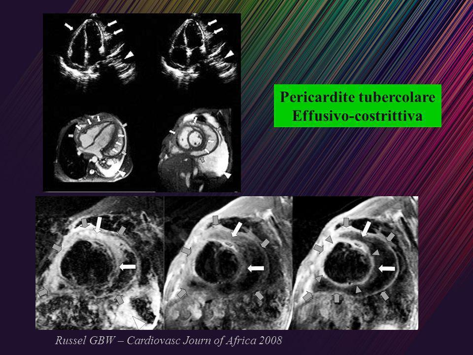 Pericardite tubercolare Effusivo-costrittiva