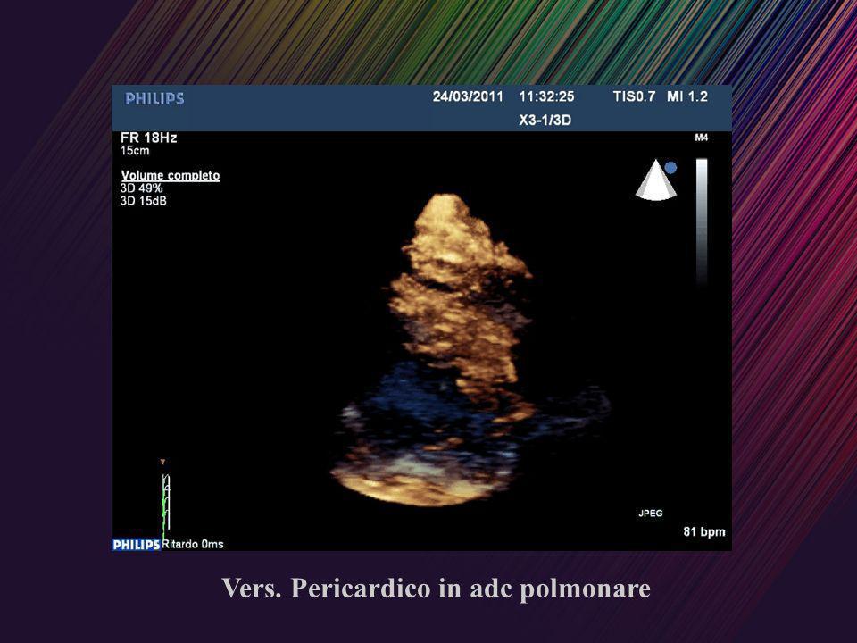 Vers. Pericardico in adc polmonare