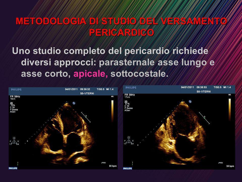METODOLOGIA DI STUDIO DEL VERSAMENTO PERICARDICO