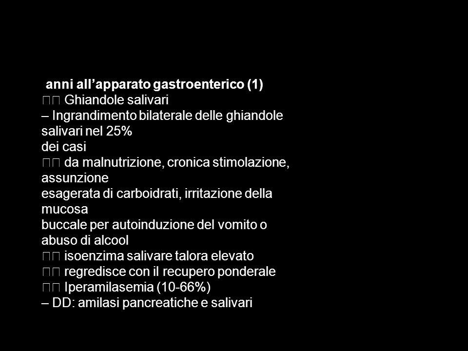 – Ingrandimento bilaterale delle ghiandole salivari nel 25% dei casi