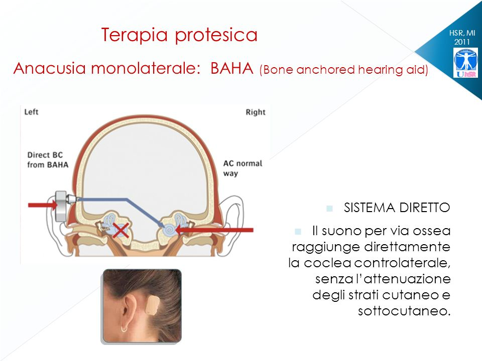 Terapia protesica Anacusia monolaterale: BAHA (Bone anchored hearing aid) HSR, MI. 2011. SISTEMA DIRETTO.