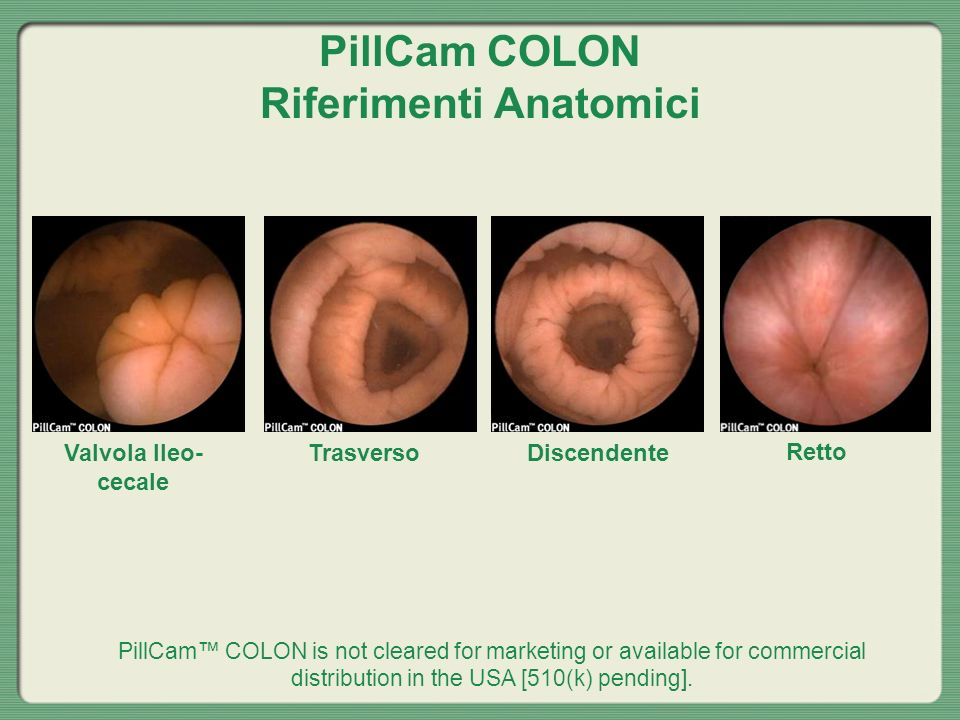 PillCam COLON Riferimenti Anatomici