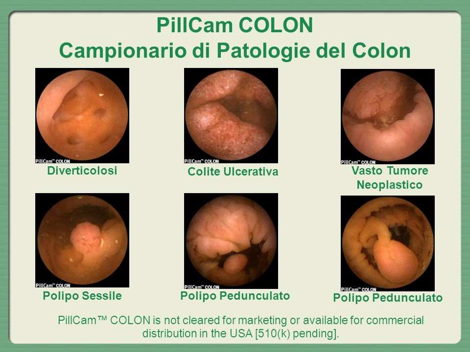 PillCam COLON Campionario di Patologie del Colon