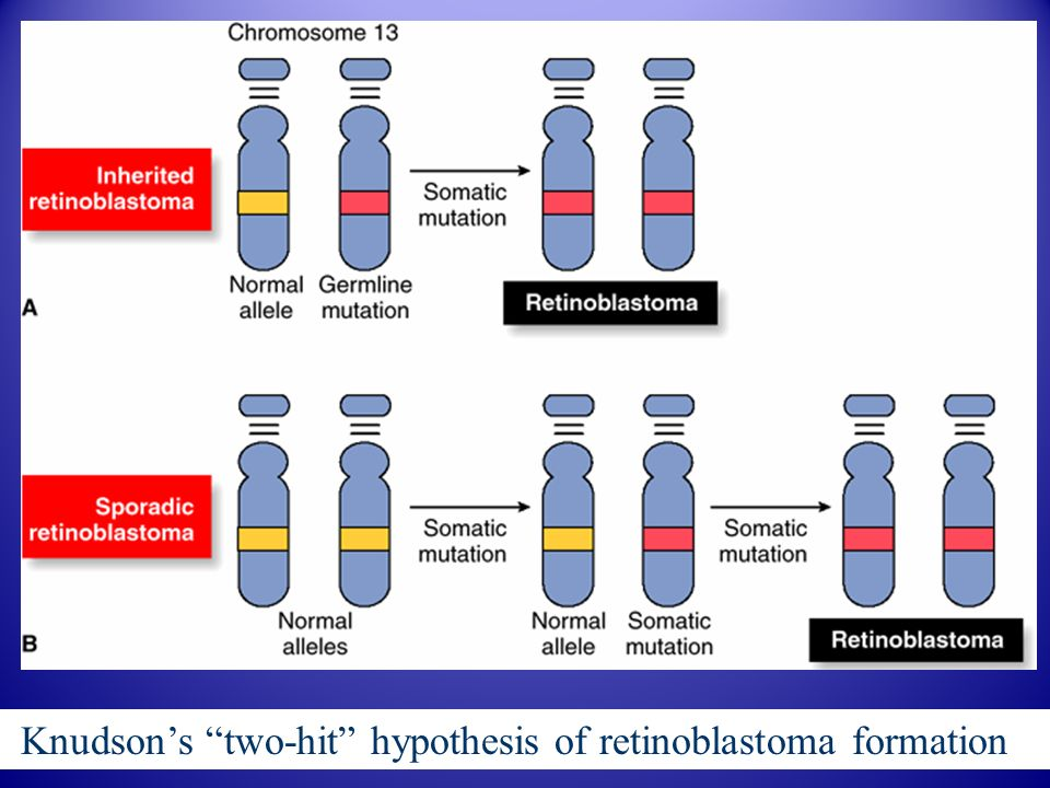Knudson's two-hit hypothesis of retinoblastoma formation