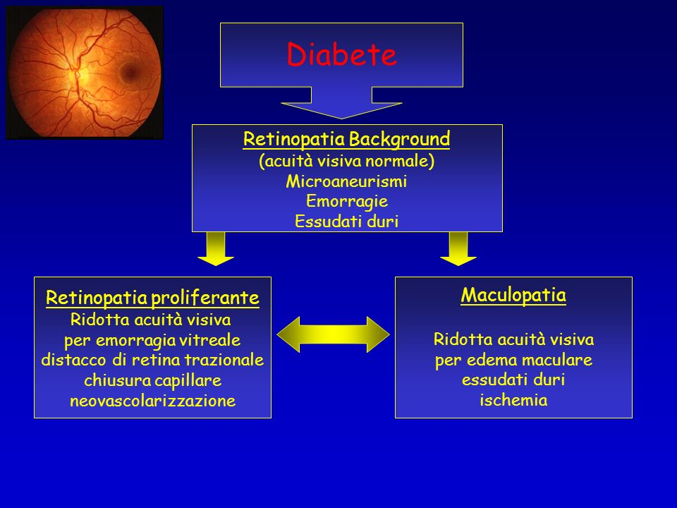 Diabete Retinopatia Background Retinopatia proliferante Maculopatia
